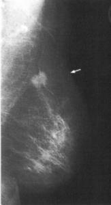 Mammographiebild11 163x300 Gynäkologische Onkologie