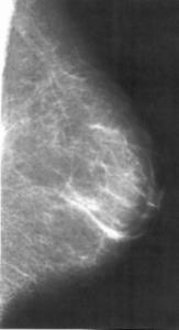 Mammographiebild21 163x300 Gynäkologische Onkologie