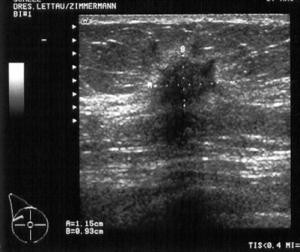 Sonographiebild 300x252 Gynäkologische Onkologie